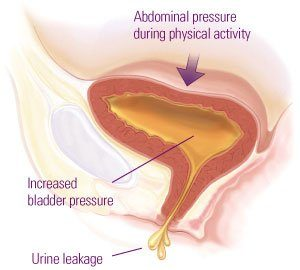 Addressing Stress Urinary Incontinence